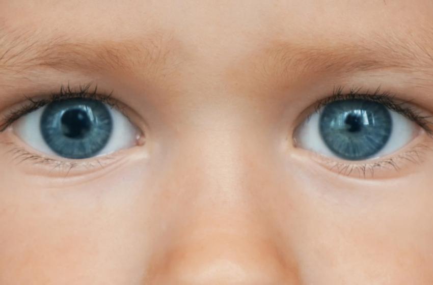Anizocorie( asimetria  pupilelor).